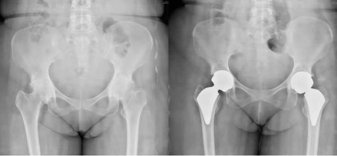 Figure 3. Preoperative and postoperative x-ray of a bilateral secondary hip osteoarthritis patient who underwent a bilateral hip replacement in the same sitting