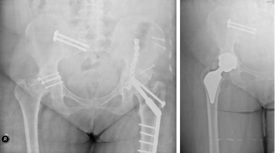 Figure 4. Preoperative and postoperative x-rays of a patient with post-traumatic hip osteoarthritis (right side operated).