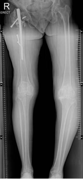Quadriceps Tendon Rupture And Contralateral Patella Tendon