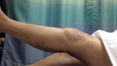 Figure 11. Follow-up at 1 year Left Leg