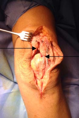 Figure 6. Left arrow- Quadriceps tear