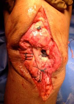 Figure 9. Hamstring Graft sutured
