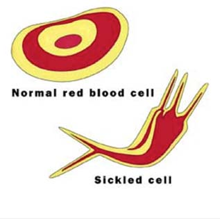 Figure 1. Normal vs. Sickle Cell affected red blood cell