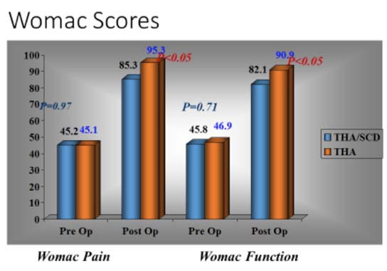 Figure 5. Pre Op & Post Op Pain & Quality of life scores in patients with and without SCD undergoing THA.