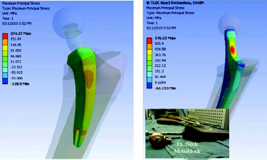 Figure 16b. FEA Model Showing 35% less Tensile Stress in the Neck-Sparing Stem versus that of a Tape-lock Style Stem. (Courtesy Declan Brazil)