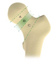 Figure 8. Illustration Showing Neck Resection Zones. Zone B being 5-10 mm as recommendation . (Omni Surgical Technique)