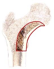 Figure 9a. Illustration Showing Medial Femoral Curve. (Courtesy JISRF Archives)