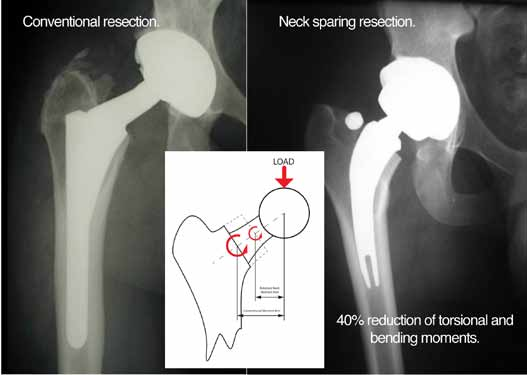 Figure 16c. Two Postoperative X-rays showing different level neck resections and  offsets resulting in less bending and tosional moments in the neck-sparing implant. (Courtesy of JISRF)