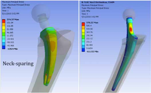 Figure 17. FEA Modeling showing 35% less tensile stress in a neck-sparing resection compared to a conventional neck resection. (Courtesy of D. Brazil)