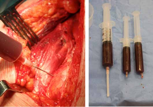 Figure 5. Capsular tension and wear slurry aspiration in a patient with ARMD. (Courtesy of E. Smith)