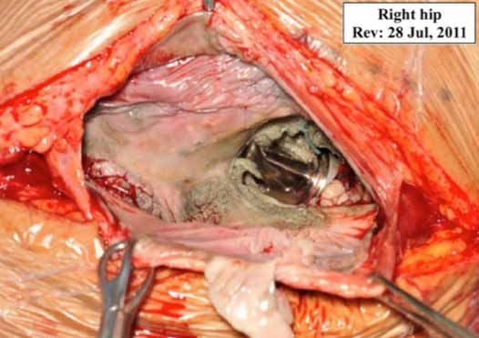 Figure 7c. Initial view of femoral neck and head at revision surgery following removal of extensive pool of green-yellow fluid. (Courtesy of Mr. A. John MB BS, FRCS, FRCS, University Hospital of Wales)