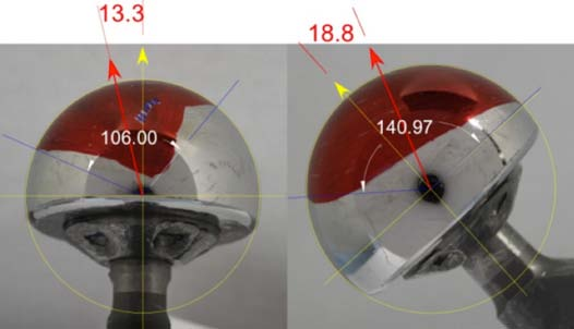 Figure 3: Coronal and transverse views of fused femoral head to calculate centroidal vectors  of MWZ.