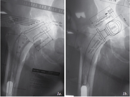 Figure 1: Radiographs showing limited proximal bone on the right. 1a. Preoperative templating with a stem of conventional length overlying a long-stemmed revision knee component.  1b. Preoperative templating with a short stem femoral prosthesis
