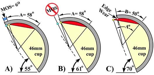 "Fig. 2. Effect of cup inclination on wear-pattern (angle-A) and margin-of-safety (MOS), A) at 55 ° inclination the cup wear-pattern has a 58° arc and MOS has a 6° arc, B) adding 6°  additional inclination reduces MOS to zero, and C) adding another 9° inclination reduces the cup wear-pattern to a 50° arc and edge wear presents. This edge-wear definition would be EW = 9/58 = 16%""."