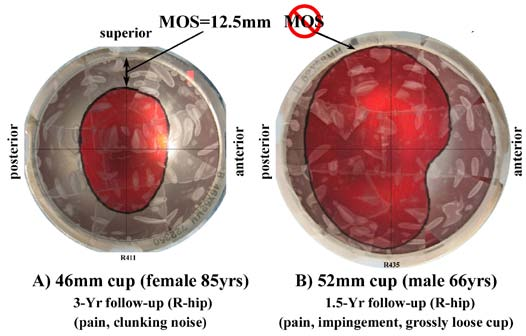 Fig. 3. Wear-patterns (colored red for photography) in MOM retrieval studies showing, (a) margin of safety superior to central wear-pattern, and (b) wear-pattern juxtaposed to cup rim indicating edge-wear.