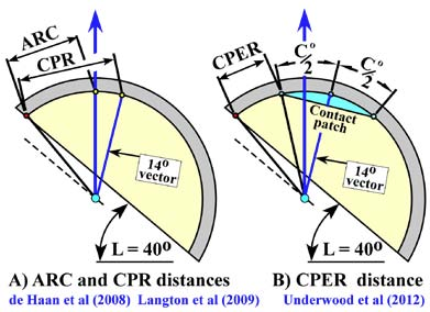 "Fig. 4. Schematic of methods used to describe cup coverage on antero-posterior images, a) ""Arc of Cover"" (ARC) [9] and ""Contact Patch to Rim"" (CPR) [1] distances, where 'ARC' defines a chord to be comparable to CPR-distance method, and b) ""Contact Patch Edge to Rim"" (CPER) [6]."