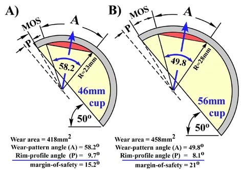 Fig. 8. Comparison of wear-pattern angles (A) and margins-of-safety (MOS) produced in 46mm and 56mm cups at same inclination angle.