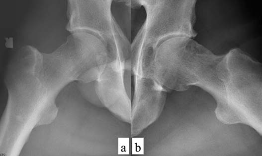 Fig. 4 : The roentgenogram findings of lateral view (a, b) of bilateral hip joints.  Mild OA on the left hip and minimal OA in the right hip were detected.