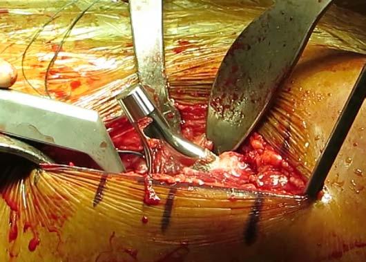 Figure 6b: Femoral stem implantation