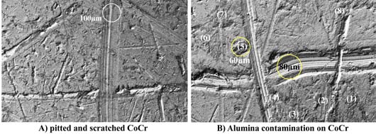 Figure 10. SEM imaging of CoCr surface scratched during alumina flake test, (A) 100µm wide scratch in pitted surface and (B) 30µm and 80µm wide scratches surrounded by plaques of alumina contamination (numbered 1-8).