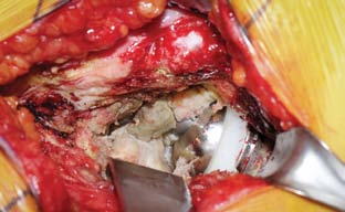 Figure 1b. Intraoperative photo showing necrotic debris and fibrosis within the hip joint. Notice that there is no visible abnormality at the junction of head and stem.