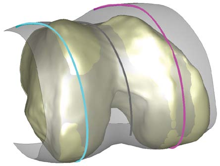 Figure 1. Showing in process stage of patient-specific 'J' curves on a CAD model of the distal femur.