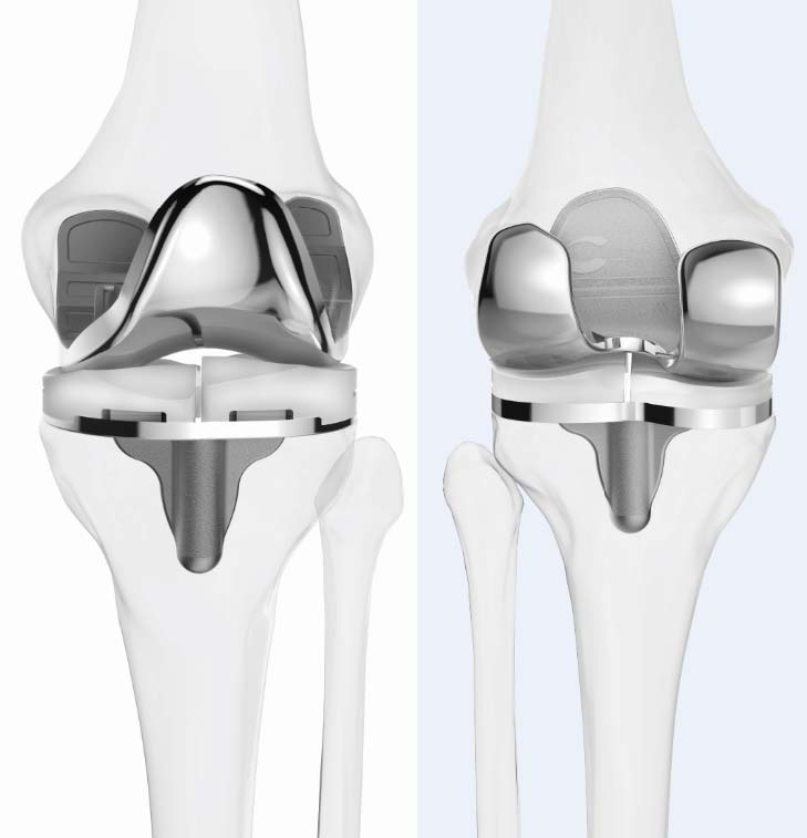 Figure 2. The patient-specific iTotal implant.