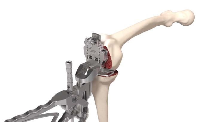 Figure 1.  Adjustment of femoral rotation by using EquiBalanceTM.