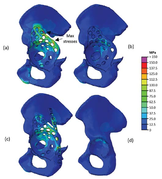 Figure 4: Stress distribution plots of (a) a Burch-Schneider cage in a large acetabular bone defect, (b) a Burch-Schneider cage in a small acetabular bone defect, (c) a Burch-Schneider cage in a large acetabular bone defect in combination with a reinforcement plate and (d) a healthy pelvis