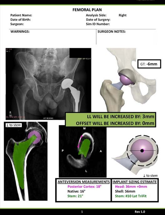 Figure 2. Femoral stem and acetabular shell templating.
