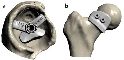 Figure 5. a) the acetabular guide delivers the target cup orientation; b) the femoral guide controls the femoral neck osteotomy.