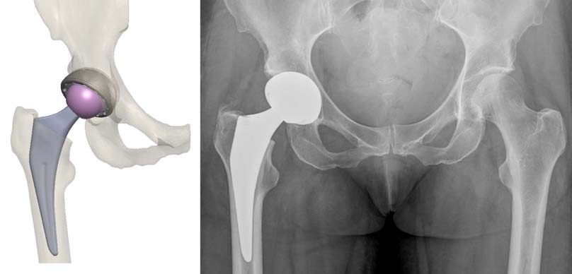 Figure 8. Left: Templated implants from OPS™ report; Right: postoperative radiograph.