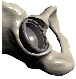 Figure 9.  Three-dimensional model from the OPS™ report illustrating the templated acetabular cup position and orientation in relation to the surrounding anatomy.
