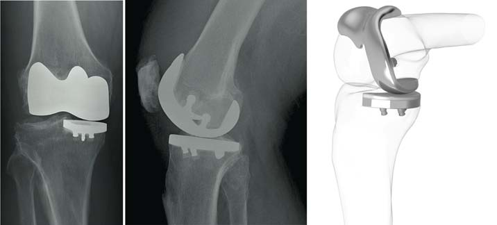 Figure 1: Post op and graphic images of the iDuo knee replacement
