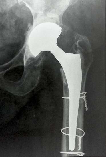Fig. 3: Radiographic examination at two year follow up.