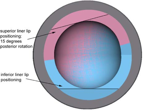 Figure 2b. (Image on right) Positions of lip liner tested in the present study.