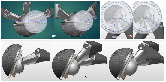 Figure 5a) Rotation and Abduction/ Adduction arc limited by implant design with no lip. b)Adduction range with inferior position of Lip liner c) 3D representation - Flexion, Flexion / Adduction, Flexion/Adduction/IR