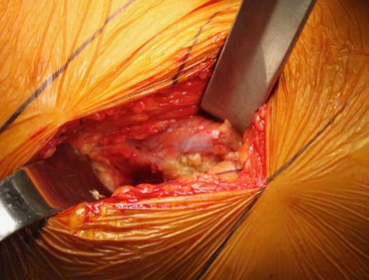 Figure 2: DA Approach superficial dissection is performed between TFL and sartorius. Image courtesy of Dr. Aaron Salyapongse