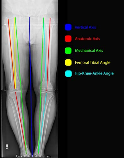 Figure 1: Illustration, demonstrating the different axes of the knee. The dark-blue line represents the vertical axis extending distally from the center of the pubic symphysis. The red lines represent the anatomic axes overall, as well as of the femur and tibia. Anatomic axes of lower extremities always are drawn proximal-to-distal and bisect the intramedullary canals. The anatomic femoral axis is typically approximately 9° of valgus compared to midline, and 5° to 7° valgus to the mechanical axis. The anatomic tibial axis is typically in approximately 3° of varus compared to the vertical axis and approximates the mechanical axis. The green line represents the mechanical axis, defined by a line drawn from the center of the femoral head to the center of the talus, and typically is approximately 3° valgus to the vertical axis. The yellow lines represent the femoral tibial angle which is formed by the intersection of the anatomic femoral axis and the joint line and is typically approximately 6° of valgus. The light-blue line represents the hip-knee-ankle angle which is created via intersection of the mechanical axis of the femur and tibia, and is typically just under 180°, and passes just medial to the tibial spine.