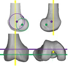 Figure 2: Illustration, demonstrating the three kinematic axes of the knee. Yellow line indicates the longitudinal axis in the tibia about which the tibia rotates on the femur. The green line indicates the transverse axis in the femur about which the tibia flexes and extends. The magenta line indicates the transverse axis in the femur about which the patella flexes and extends.