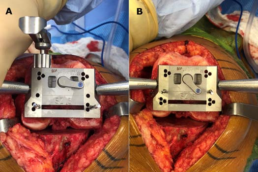 Figure 4A & 4B: Intraoperative photographs of the AP cutting block positioned for kinematic alignment (A); equal posterior condylar bone resections) versus traditional alignment (B) seeking external rotation of the femoral component relative to the posterior condylar axis.