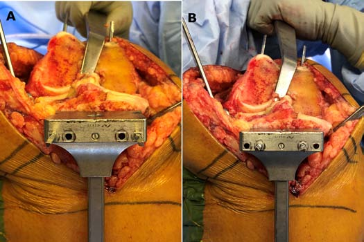 Figure 5A & B: Intraoperative photographs of the tibial cutting jig positioned for kinematic alignment (A); equal medial and lateral condylar resections considering wear) versus traditional mechanical alignment in which less bone is resected medially (B).