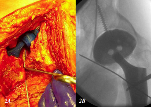Figure 2. (A)  Photo illustrates a cable inserted into the psoas tendon sheath at the level of the lesser trochanteror through a conventional posterior approach. (B) Flouroscopic image demonstrates the position of the cable in the psoas tendon sheath in proximity to the inferior margin of the acetabular shell.