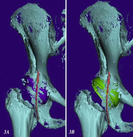 Figure 3. (A)  Solid model of the pelvis created using a typical CT scan. The offset head center shell (blue) and cable (red) are shown. (B) Solid model of the same pelvi where the offset head center has been replaced by a conventional hemispherical shell (Green).