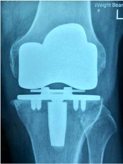 Figure 6: X-ray showing stable interface with Regenerex tibial tray.
