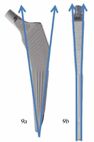 Figure 9 – Photograph of implant showing; 9a - AP view showing Design features; 9b - Lateral view showing design features