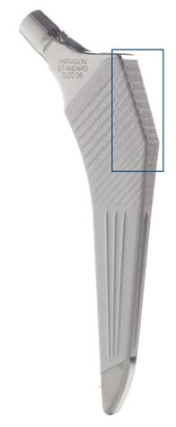 Figure 10 – Photograph of paragon stem showing lateral tensile grooves